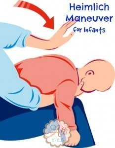 Heimlich Maneuver on Infants